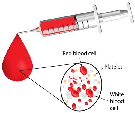 Labeled Needle and Blood Diagram Ilustração