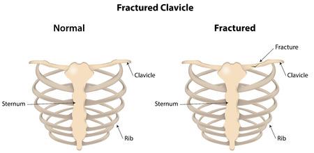 骨折した鎖骨標識図