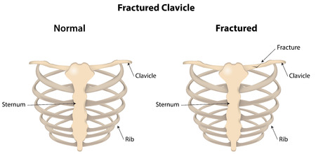 Fractured Clavicle Labeled Diagram Vector