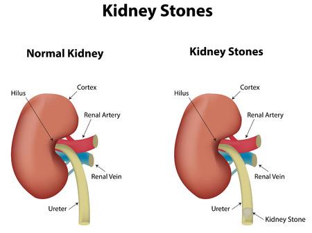 renal stone: Kidney Stones