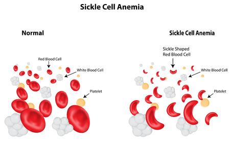 globulo rojo: La anemia de células falciformes