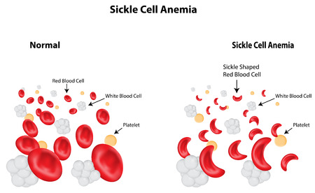 Sickle Cell Anemia Vector