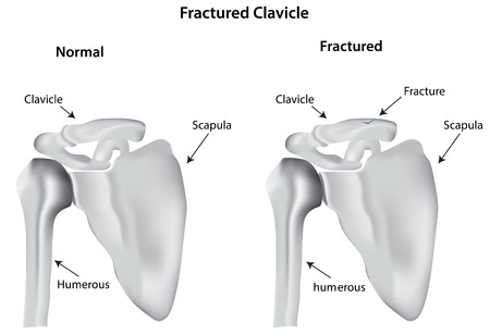Fractured Clavicle Vector