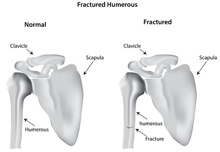 fracture arm: Fractured Humerus