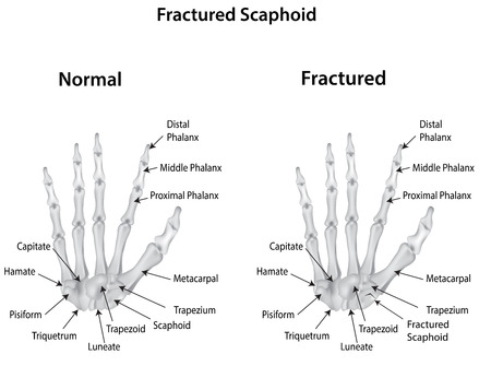 phalanges: Fractured Scaphoid