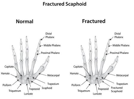 Fractured Scaphoid