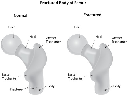 labelled: Fractured Body of Femur Diagram
