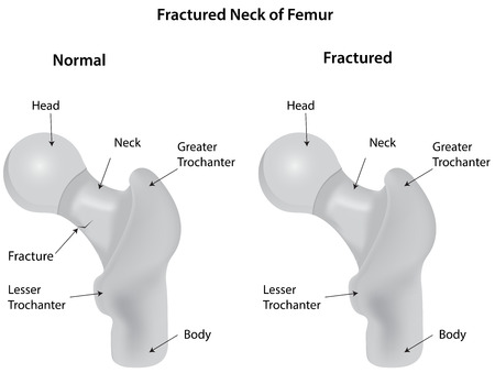labelled: Fractured Neck of Femur Diagram