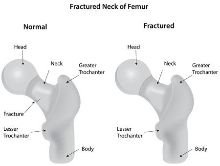femoral head: Fractured Neck of Femur Diagram