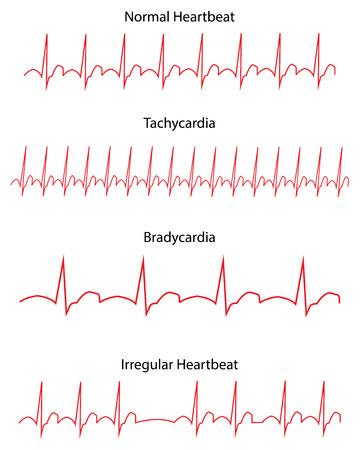 EKG von Normal- und Pathologien Standard-Bild - 32265060