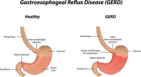 sphincter: Gastroesophageal Reflux Disease GERD