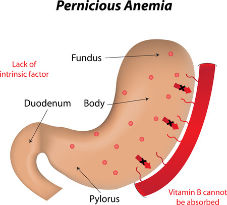 pylorus: Pernicious Anemia Illustration