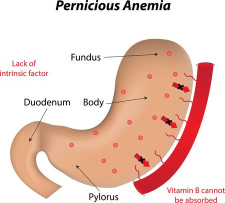 pernicious: Pernicious Anemia Illustration