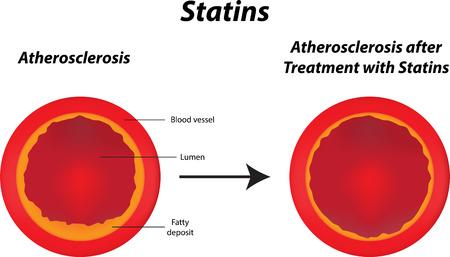 lipoprotein: Statins