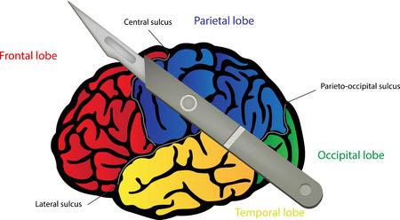 sulcus: Brain Surgery
