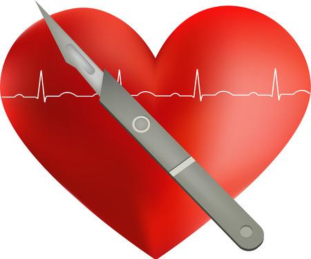 klatki piersiowej: Operacja serca