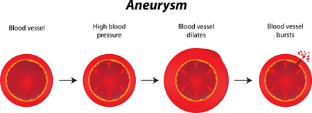 blood vessel: Aneurysm
