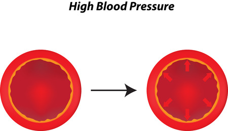 systolic: High Blood Pressure