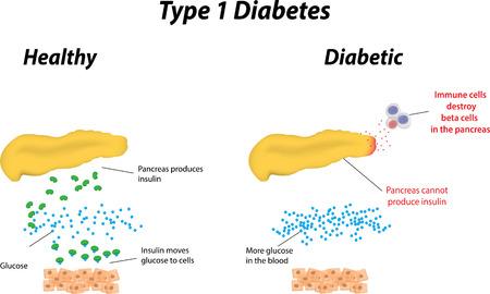 trzustka: Cukrzyca typu 1