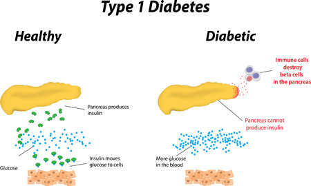 blood type: Type 1 Diabetes