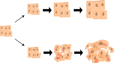progression: Cancer Progression