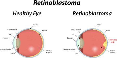 Retinoblastoma Labeled Diagram Stock Vector - 32265874