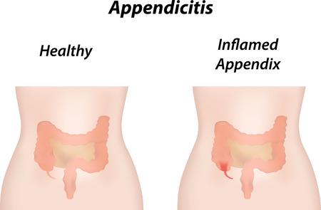 intestino grueso: Apendicitis Vectores