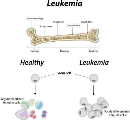 leucemia: Leucemia Diagrama Vectores