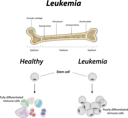 Leukemia Diagram Vector