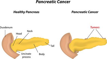 Pancreatic Cancer Illustration