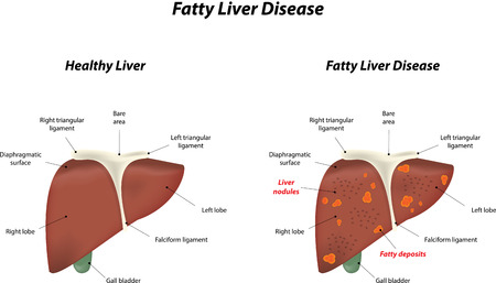 falciform: Fatty Liver Disease Illustration