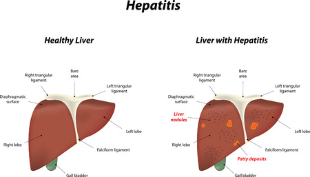 falciform: Hepatitis Illustration
