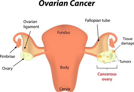tumors: Ovarian Cancer Illustration