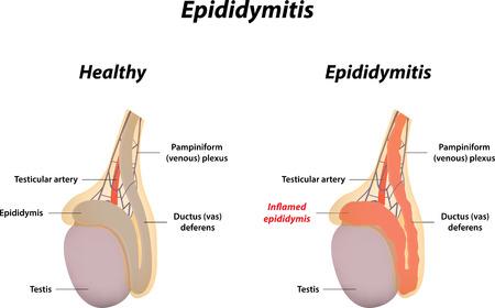 testes: Epididymitis