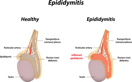 ductus deferens: Epididymitis