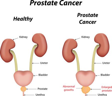 prostate cancer: Prostate Cancer Illustration