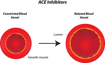enzyme: ACE Inhibitors