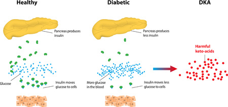 blood sugar: Chetoacidosi diabetica