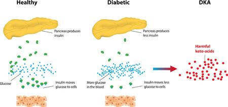 Diabetische ketoacidose Stock Illustratie