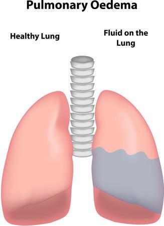 alveolos: Edema Pulmonar