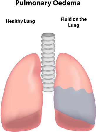 bronchioles: Pulmonary Oedema