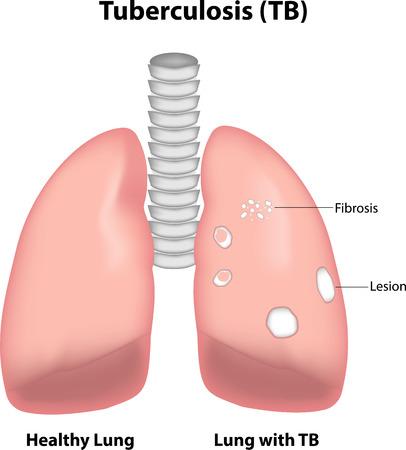 bronchioles: Tuberculosis (TB)