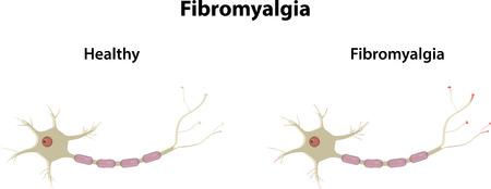 neurone: Fibromyalgia Illustration