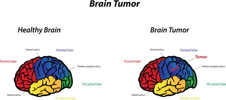 cerebrum: Brain Tumor