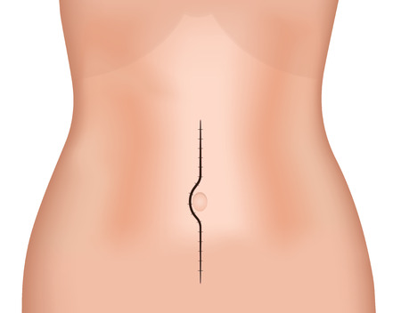 median: Midline (Median) Incision Scar Illustration