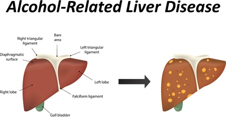poisoning: Alcoholic Liver Disease