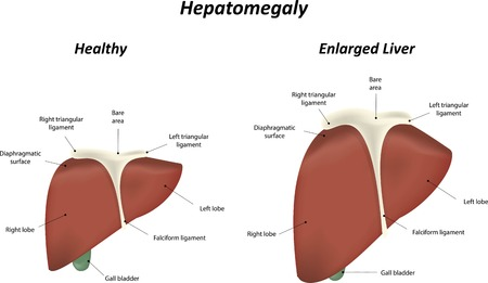 falciform: Enlarged Liver Illustration