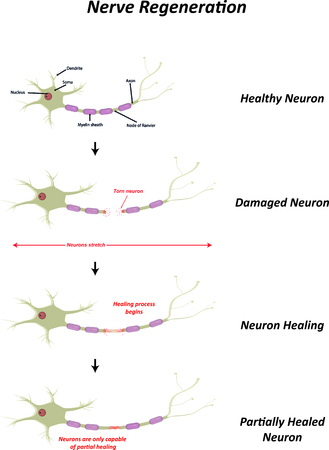 nerve: Nerve Regeneration Illustration Illustration