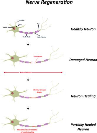 nerve damage: Nerve Regeneration Illustration Illustration