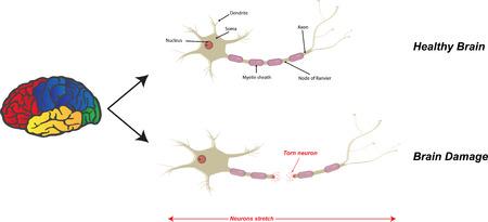 zarar: Beyin Hasarı İllüstrasyon Çizim